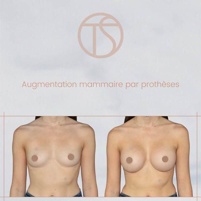 augmentation mammaire bordeaux