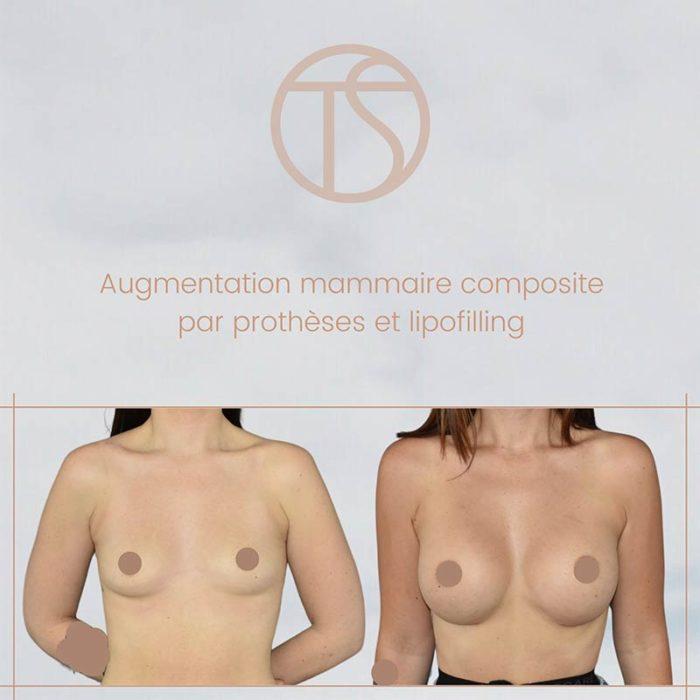 augmentation mammaire lipofilling bordeaux