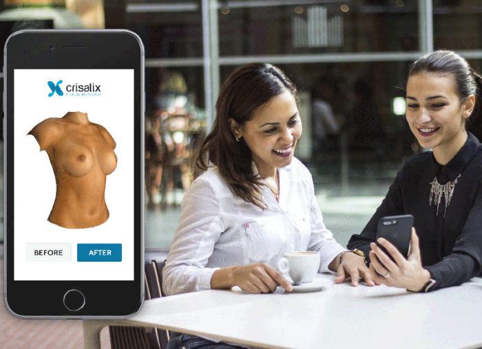 chirurgie-esthetique-virtuel-seins-thomas-sorin-bordeaux-crisalix