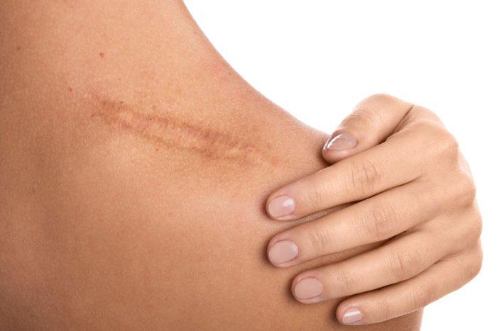 reprise de cicatrices laser bordeaux