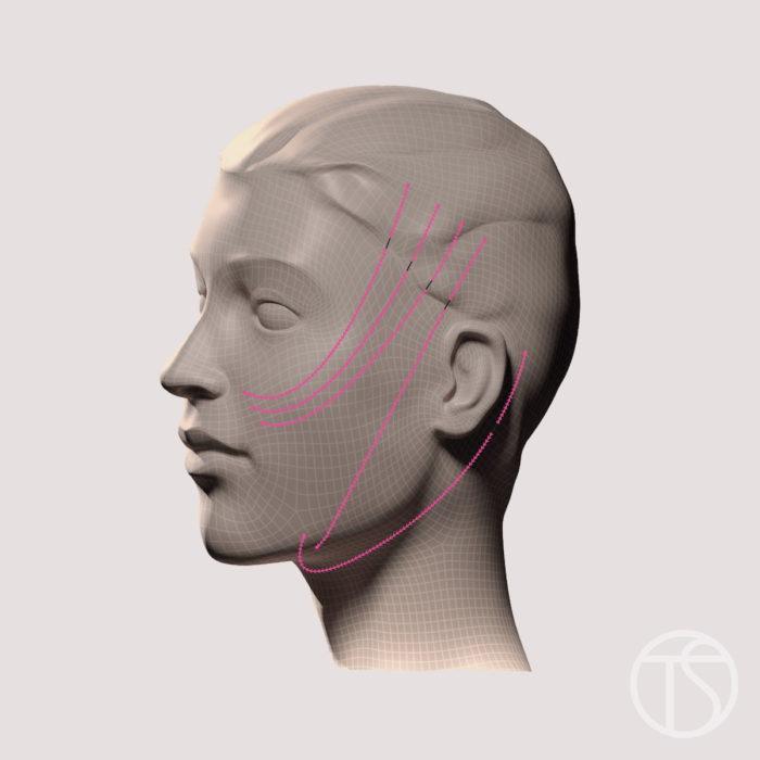 fils-tenseurs-lifting-medical-Image-3D