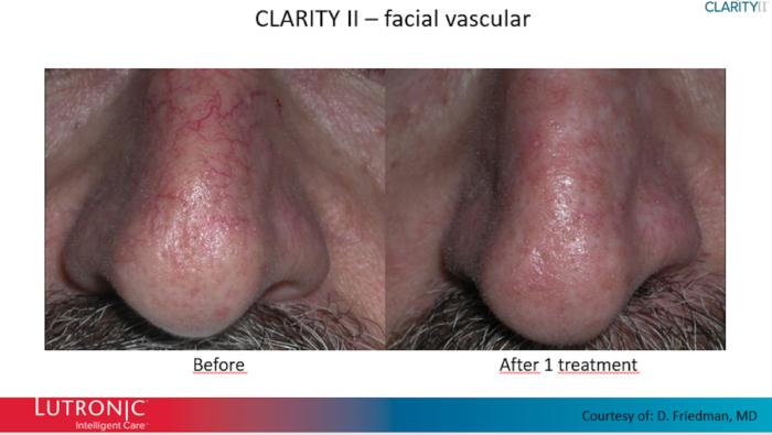 laser-epilatoire-bordeaux-epilation-definitive-Clarity-II-avap4