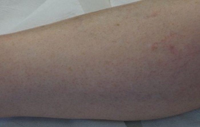 laser-epilatoire-bordeaux-epilation-definitive-Clarity-II-veines-jambes-2-apres