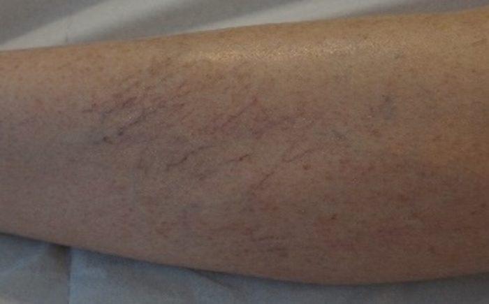 laser-epilatoire-bordeaux-epilation-definitive-Clarity-II-veines-jambes-2-avant