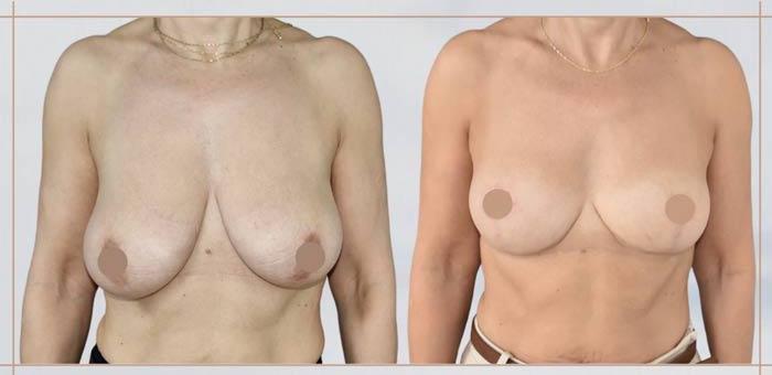 lifting-mammaire-bordeaux-2