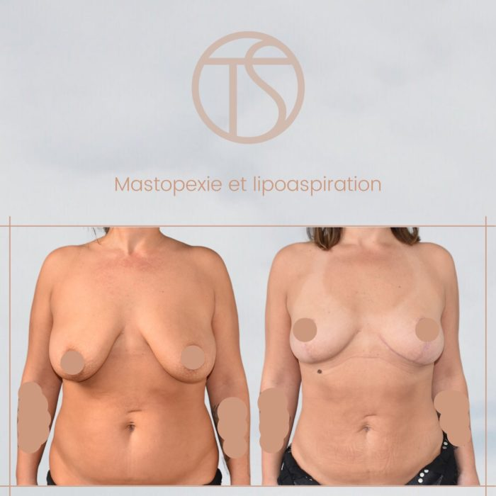 mastopexie-avant-apres